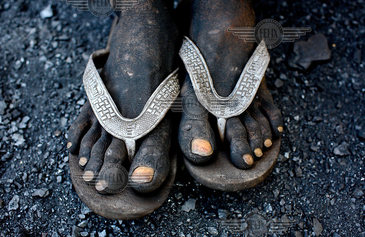 The feet of a contract labourer, working at an open cast coal mine, are coated in thick black coal dust. After carrying baskets of rock coal for 10 - 12 hours per day he'll earn less than GBP 2.20. /Felix Features