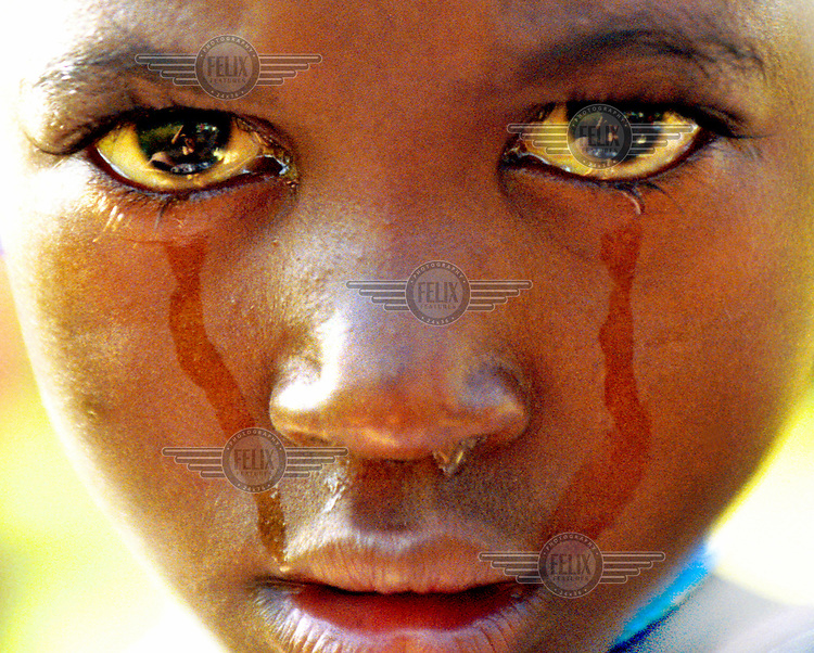 Fulani child Abi Taco cries in the village of Dembel Jumpora.