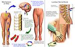 Traumatic Leg Injury with Resulting Reflex Sympathetic Dystrophy (RSD).