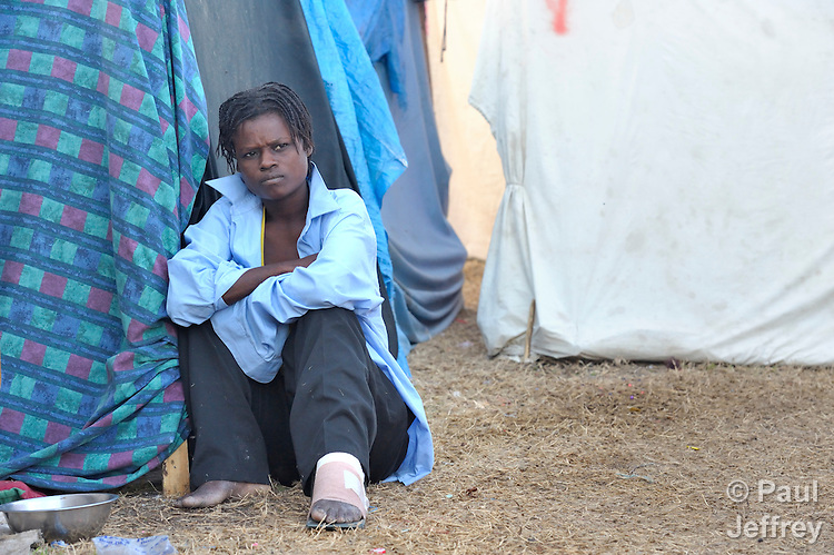 A woman, her foot still bandaged, sits in a camp for homeless families set up on a golf course in Port-au-Prince, Haiti, which was ravaged by a January 12 earthquake.