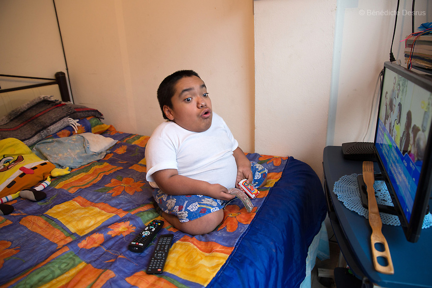 Joaquin Eduardo Torres Gil, 14, watching television in his bedroom in Mexico City, Mexico, on February 16, 2017. Joaquin is the youngest of five siblings, three of whom have been diagnosed with Morquio syndrome. Morquio syndrome is a rare inherited birth defect that is estimated to occur in one of every 200,000 births. The disease may not be visible at birth; symptoms usually begin between ages 1 and 3. Morquio syndrome is a progressive disease, meaning symptoms get worse as a child grows. Photo credit: Bénédicte Desrus