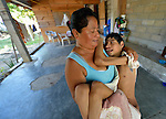 Nancy Larrea carries her son Aldo, 19, who was born with disabilities. Larrea and her son have participated in activities of Piña Palmera, a center for community based rehabilitation in Zipolite, a town in Oaxaca, Mexico.