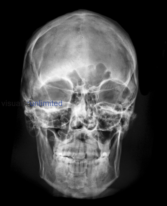 X-ray frontal view of the skull | Visuals Unlimited X Ray Views Of Skull