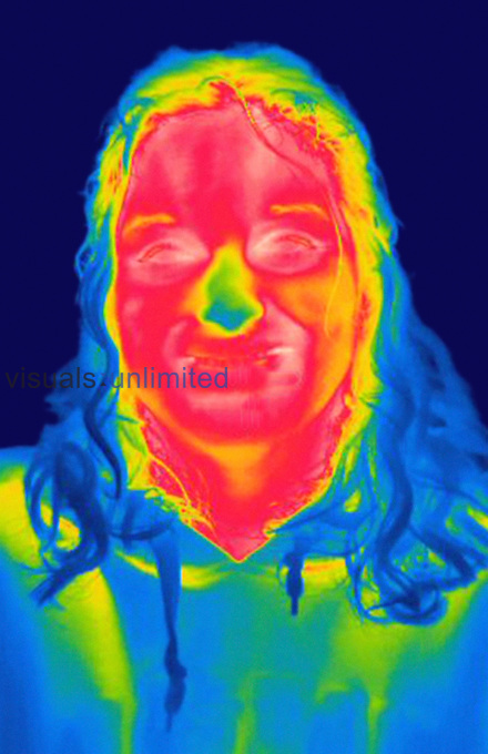 Thermogram of the head of an adult woman. The temperature scale runs from white (warmest) through red, yellow, green and cyan, blue and black (coldest).