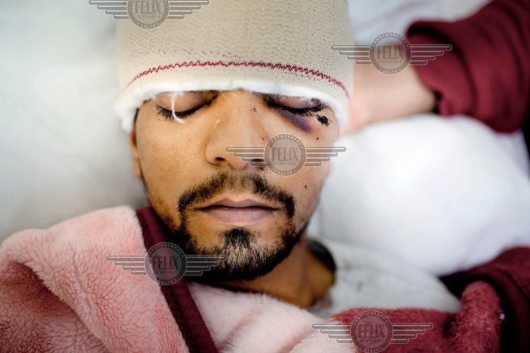 Salem Fathallah was shot in the head by pro-Gadaffi forces during the fight for Agdabia and is now being treated in the Albatnan hospital where wounded civilians and rebel fighters are being cared for. He is still conscious, but in critical condition.