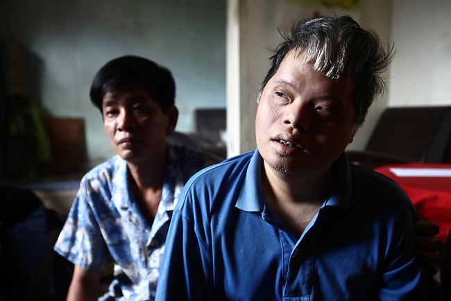 "Dang Chi Tam, 42, a second generation victim of Agent Orange, sits with her brother Dang Chi Trung, 43, in their home in Da Nang, Vietnam. Their parents, now deceased, were long-time members of the Communist Party, and served in the wars against the French and Americans. Trung is the sole caregiver for his sister, who is mentally disabled and unable to speak or care for herself. ""Even personal hygiene she doesn't know how to do,"" he says. ""Even to go to the toilet, she doesn't know how to do."" They survive on about $60 a month that is provided by the Vietnamese government. ""It is very difficult for us to live,"" he says. ""Because I have to care for her, I cannot go out for very long. It is very difficult for me to get a job."" The Vietnam Red Cross estimates that 3 million Vietnamese suffer from illnesses related to dioxin exposure, including at least 150,000 people born with severe birth defects since the end of the war. The U.S. government is paying to clean up dioxin-contaminated soil at the Da Nang airport, which served as a major U.S. base during the conflict. But the U.S. government still denies that dioxin is to blame for widespread health problems in Vietnam and has never provided any money specifically to help the country's Agent Orange victims. May 29, 2012."