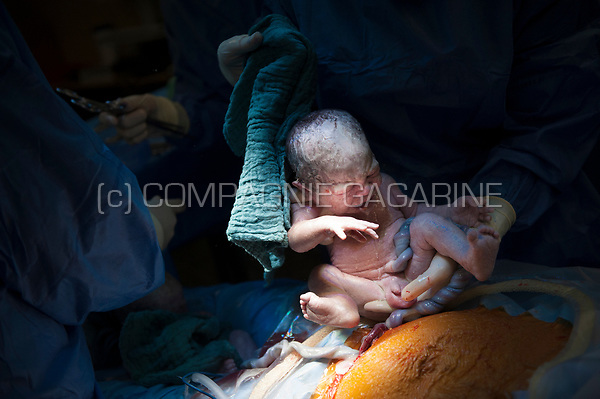 A woman giving birth to twins by caesarean section (Heverlee, 30/12/2016)