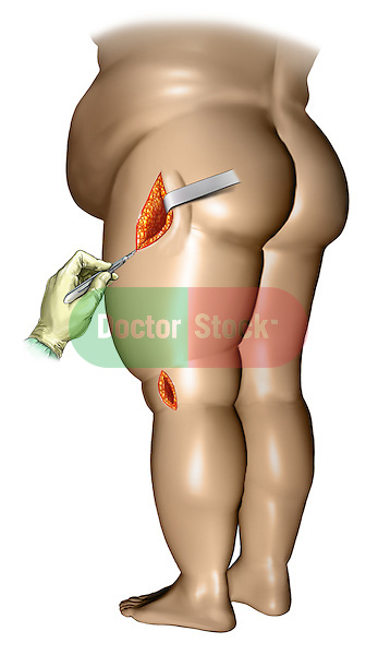 Side incisions over hip and knee