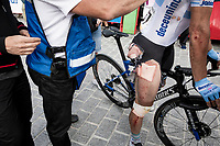 the unfortunate Maximiliano Richeze (ARG/Deceuninck Quick Step) clearly showing the results of the big crash he was involved in mid-race, after finishing<br /> <br /> Stage 19: Ávila to Toledo (165km)<br /> La Vuelta 2019<br /> <br /> ©kramon
