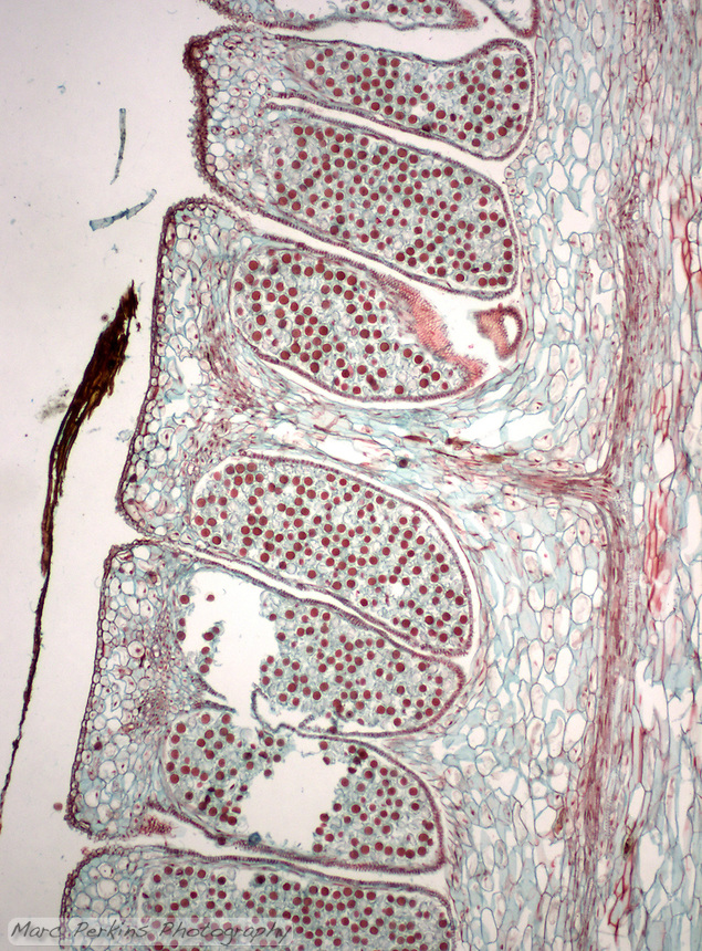 Sporangia producing spores attached to a central axis.