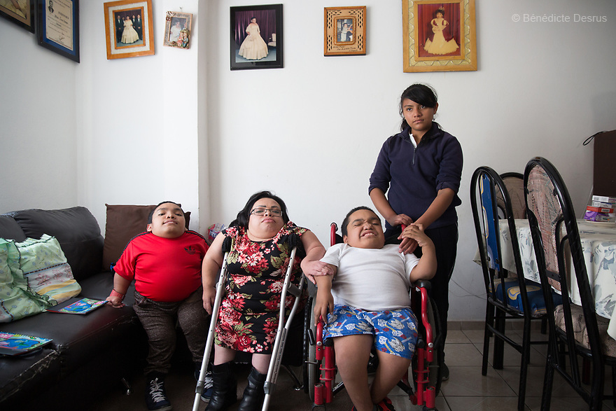 From left to right: Alfredo Ivan Torres Gil, 18 - Brenda Eduardo Torres, 32  and Joaquin Eduardo Torres Gil, 14 pictured with their niece at their home in Mexico City, Mexico on February 16, 2017. The three siblings have been diagnosed with Morquio syndrome. Morquio syndrome is a rare inherited birth defect that is estimated to occur in one of every 200,000 births. The disease may not be visible at birth; symptoms usually begin between ages 1 and 3. Morquio syndrome is a progressive disease, meaning symptoms get worse as a child grows. Photo credit: Bénédicte Desrus