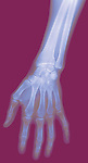 X-ray image of a hand (color on red) by Jim Wehtje, specialist in x-ray art and design images.
