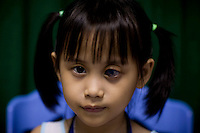 Nhi Uyen Luong, 7, waits for doctors to examine her eyes during screening day at the Ho Chi Minh City Eye Hospital on Monday, April 14, 2008. Luong suffers from congenital glaucoma...ORBIS Flying Eye Hospital brought doctors, nurses and specialists from all over the world to Ho Chi Minh City, Vietnam from April 7-18, 2008.  The ORBIS program contributed to the efforts of Ho Chi Minh City Eye Hospital in fighting avoidable blindness by educating local ophthalmologists to diagnose and manage pediatric blindness, retinal disease, oculoplastics, and blindness due to glaucoma.