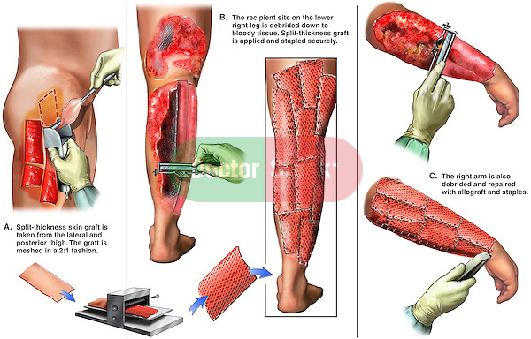 Burns - Skin Grafting Debridement. The medical exhibit illustrates the split-thickness skin harvest, debridement of injured tissue, and the applying of the allograft to arm and leg injuries.