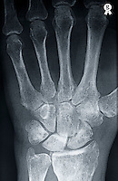 X-ray image of mature man's (58)  left hand (Licence this image exclusively with Getty: http://www.gettyimages.com/detail/98627213 )