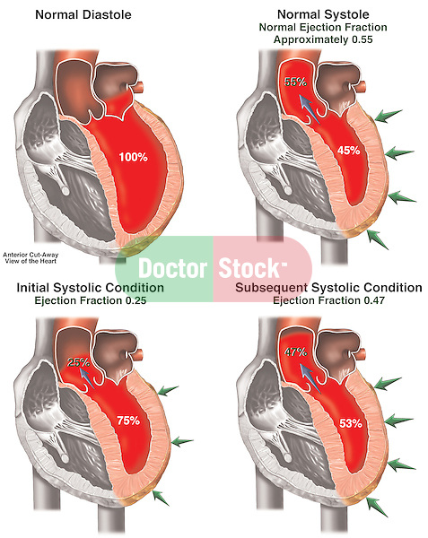 Heart Attack - Deteriorating Cardiac Ejection Volume Following Myocardial Infarction.