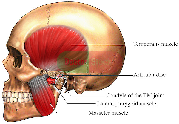 This medical exhibit illustrates the main muscles used in masstication and the temporomandibular joint (TMJ).