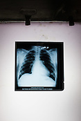 An x-ray of heart patient, Ajay Singh Goyal (23) is displayed on the lightbox in at Operation theatre of the Narayana Hrudayalaya in Bangalore, Karnataka, India. Photo: Sanjit Das/Panos