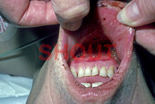 Wound tearing lower lip from jaw. This image may only be used to portray the subject in a positive manner..©shoutpictures.com..john@shoutpictures.com