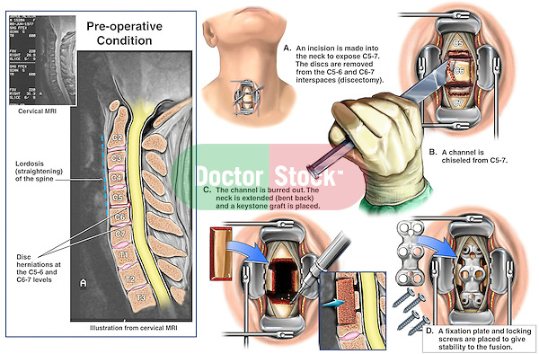 Cervical Spine Injuries With Proposed Spinal Fusion Surgery Doctor