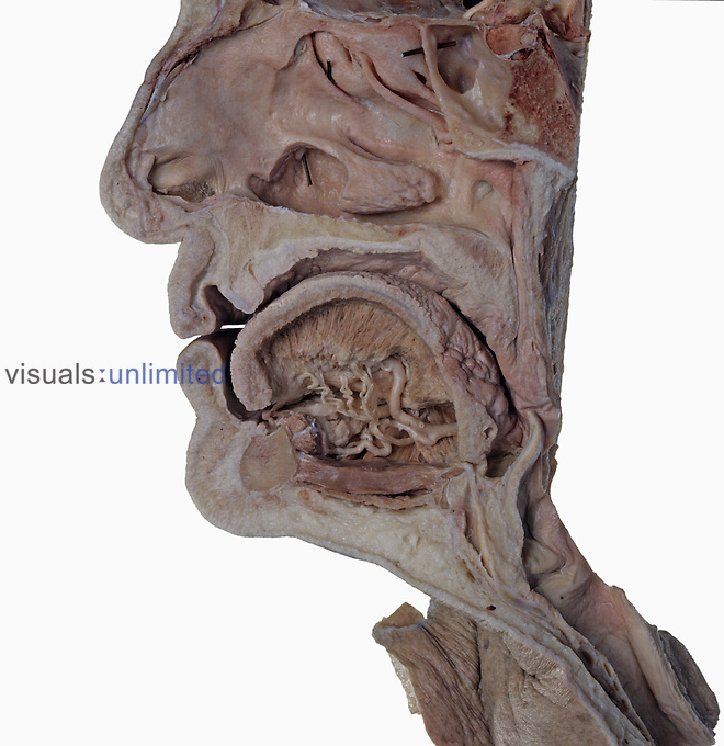 Cadaver head section with a deep dissection of the right half of tongue, deep lingual artery, lingual nerve, hypoglosal nerve and submandibular duct.
