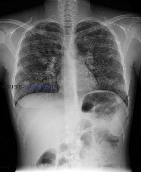 Chest x-ray of a 28 year old woman with cystic fibrosis showing bronchiectasis as suggested by the diffusely increased reticular markings within the right and left lungs. There is also an area of increased density in the right lower lung field which may represent an infiltrate.