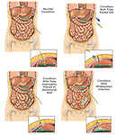 This custom medical exhibit features four comparative views of the abdomen with a gastrostomy (feeding) tube over time. Each view of the abdomen is accompanied by a small inset detailing the tip of the gastrostomy tube. ..Progression shown is: 1. Normal condition, 2. Condition with tube pulled out, 3. Condition with improperly replaced tube spreading initial infection, 4. Subsequent condition with widespread infection.