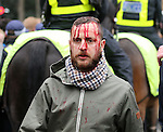 A bloodied fan walks into the ground<br /> <br /> - English Premier League - Tottenham Hotspur vs Arsenal  - White Hart Lane - London - England - 5th March 2016 - Pic David Klein/Sportimage