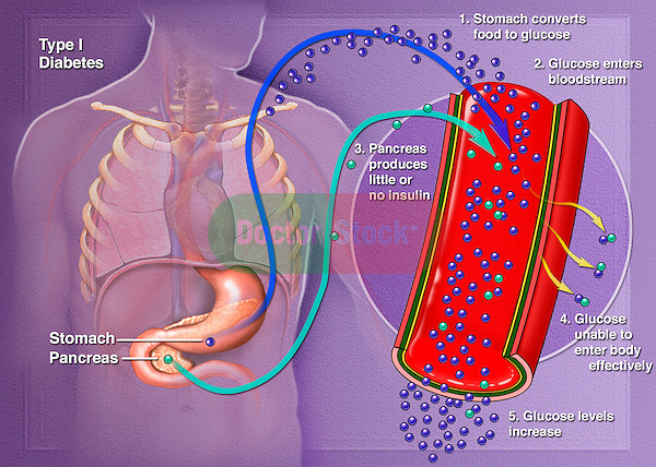This medical illustration demonstrates type 1 diabetes. Type 1 diabetes occurs when little or no insulin is made by the pancreas, usually occurring under the age of 30 and requiring insulin injections for life. Also known as insulin dependent and juvenile onset diabetes.