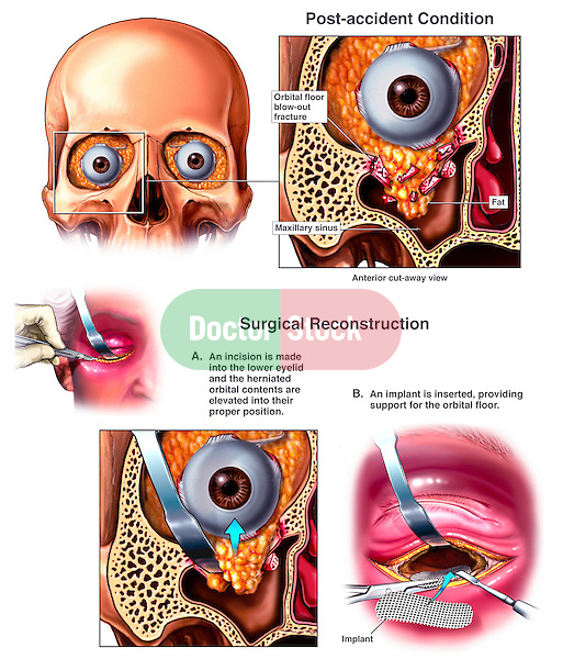 Fractured Eye Socket - Orbital Fracture Reconstruction Surgery. This full color custom medical exhibit depicts the repair of an orbital blowout fracture with surgical reconstruction of the orbital floor. A coronal (anterior cut-away) section shows the right eye contents oozing through the inferior fracture site into the maxillary sinus below. This is followed by three intra-operative views showing the step by step implantation of a wire mesh to reconstruct the orbital floor.