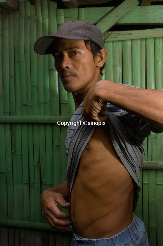 Vinar Mista, 34 who sold his kidney in 2003 for 90,000 pesos.  In the Basico area more than 3000 have sold their kidneys mostly to foreigners.<br />