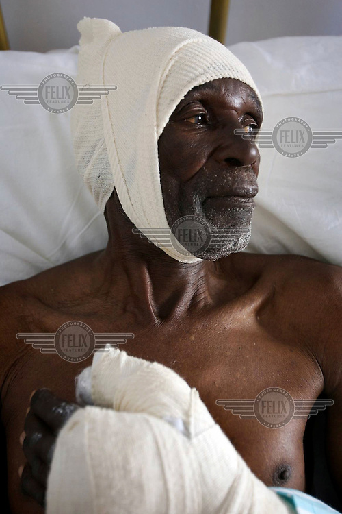 80 year old Ozingai was left with a scarred head and broken hand after being attacked by 10 uniformed soldiers on 24/06/2008. He was beaten with chains for having a son who is an activist with the opposition Movement for Democratic Change (MDC). Violence against opposition supporters forced the MDC to withdraw days before a presidential run-off election which was widely dismissed as a sham..