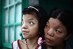 "Le Thi Thu, 42, and her daughter, Nguyen Thi Ly, 11 sit outside their home in a village south of Da Nang, Vietnam. They are second and third generation victims of dioxin exposure, the result of the U.S. military's use of Agent Orange and other herbicides during the Vietnam War more than 40 years ago. Despite their facial deformities and other health problems, Thu says she never feels anger at what has happened to herself and her daughter. ""I'm not angry with anybody just because Vietnam had a war,"" she says. ""A lot of people suffered. Sometimes I feel sad, but I'm not angry with anybody."" The Vietnam Red Cross estimates that 3 million Vietnamese suffer from illnesses related to dioxin exposure, including at least 150,000 people born with severe birth defects since the end of the war. The U.S. government is paying to clean up dioxin-contaminated soil at the Da Nang airport, which served as a major U.S. base during the conflict. But the U.S. government still denies that dioxin is to blame for widespread health problems in Vietnam and has never provided any money specifically to help the country's Agent Orange victims. May 28, 2012."