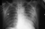 Chest and lung x-ray of a person with an infection of Plague caused by Yersinia pestis Bacteria. The first signs of plague are fever, headache, weakness, and rapidly developing pneumonia with shortness of breath, chest pain, cough, and sometimes bloody or watery sputum, eventually progressing for 2-4 days into respiratory failure and shock.