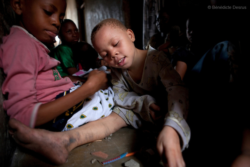 June 30, 2010 - Dar es Salaam, Tanzania - Tausi Hamisi, a 9 year old albino girl, plays in the corridor of her house with friends. Fatima Husseni and her husband Hamisi Husseni are not Albino, although four of their five children are albinos. Albinism is a recessive gene but when two carriers of the gene have a child it has a one in four chance of getting albinism. Tanzania is believed to have Africa' s largest population of albinos, a genetic condition caused by a lack of melanin in the skin, eyes and hair and has an incidence seven times higher than elsewhere in the world. Over the last three years people with albinism have been threatened by an alarming increase in the criminal trade of Albino body parts. At least 53 albinos have been killed since 2007, some as young as six months old. Many more have been attacked with machetes and their limbs stolen while they are still alive. Witch doctors tell their clients that the body parts will bring them luck in love, life and business. The belief that albino body parts have magical powers has driven thousands of Africa's albinos into hiding, fearful of losing their lives and limbs to unscrupulous dealers who can make up to US$75,000 selling a complete dismembered set. The killings have now spread to neighboring countries, like Kenya, Uganda and Burundi and an international market for albino body parts has been rumored to reach as far as West Africa. Photo credit: Benedicte Desrus