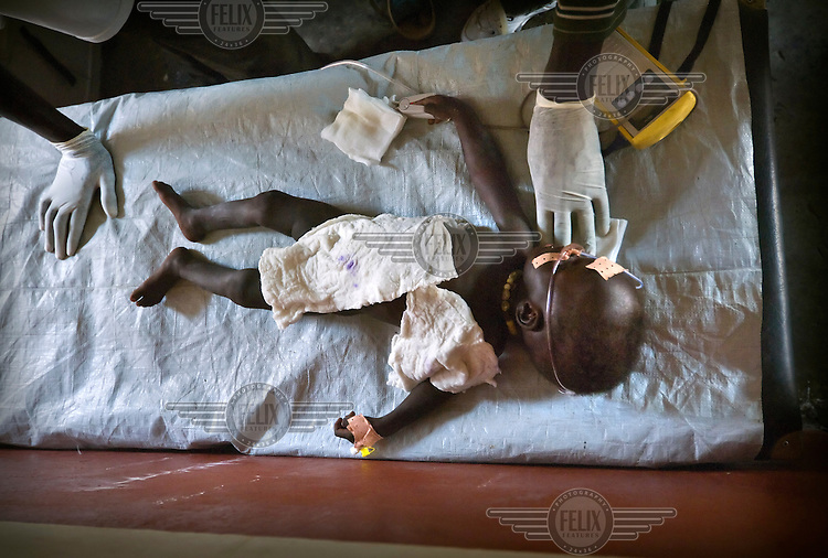A baby with severe dehydration is treated on the intensive care table of a hospital managed by MSF (Medecins Sans Frontieres)..