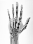 Normal hand x-ray of a 22 year old man