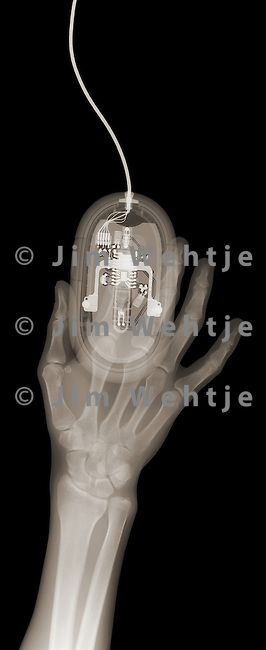 X-ray image of a hand and computer mouse (brown on black) by Jim Wehtje, specialist in x-ray art and design images.