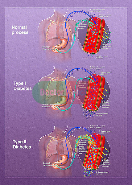 This medical illustration compares and contrasts normal insulin production and glucose management with that of type 1 and type 2 diabetes.