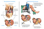 Right Knee Injuries with Arthroscopic Surgery Repairs.