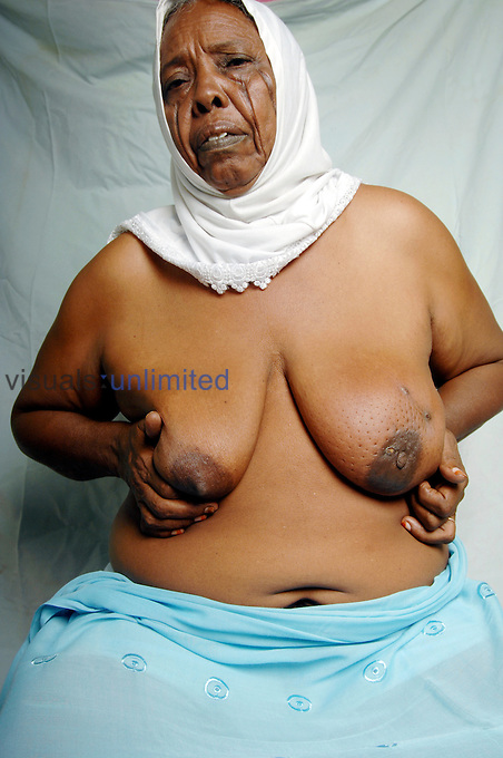 A 70-year-old woman from Northern Sudan, with Carcinoma of the left breast. (Model Released)..The lymphatic system is responsible for drainage of the interstitial fluid (lymph) bathing the cells. 75% of the lymph surrounding breast cells is drained to the axilla. When an invasive carcinoma enters the lymphatic system, it can follow the course up to the a