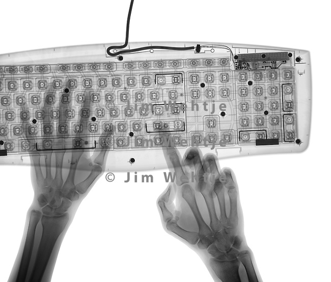 X-ray image of hands and keyboard (black on white) by Jim Wehtje, specialist in x-ray art and design images.