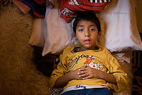 8-year-old boy lies on the sofa in his house in Cesmin Lug IDP camp in northern Mitrovica. He has been chronically ill since his birth.