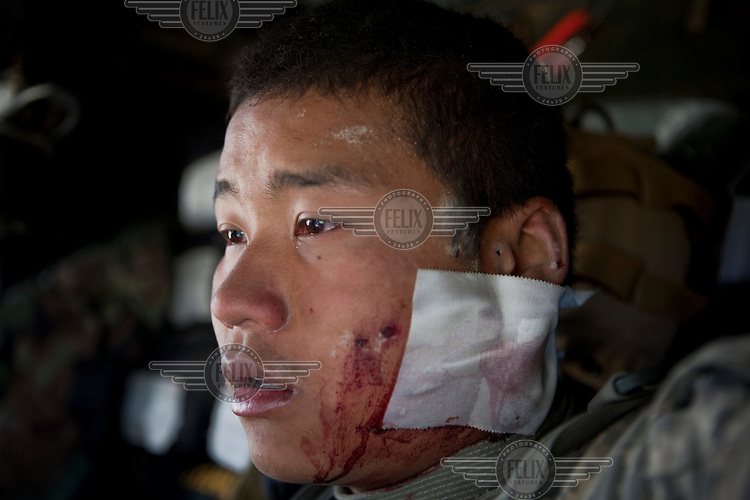 US Army soldier SPC Santisouk Champada, Charley Troop, 1-71 Cav, 1st Brigade Combat Team, 10th Mountain Division who was injured in an IED (improvised explosive device) blast sits on a medevac helicopter near Kandahar with a bandage on his face.