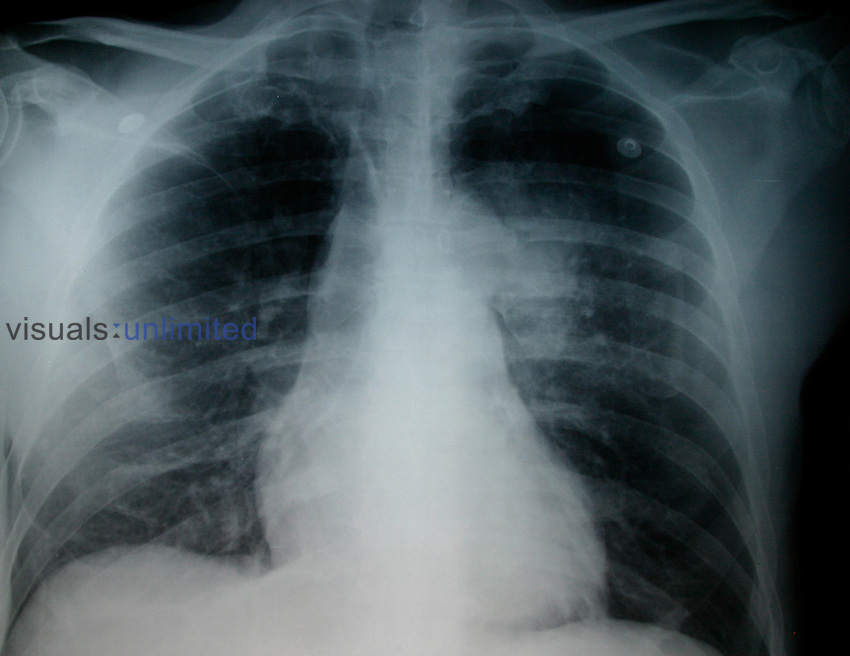 Carcinoma of left lung with mass in hilus area.