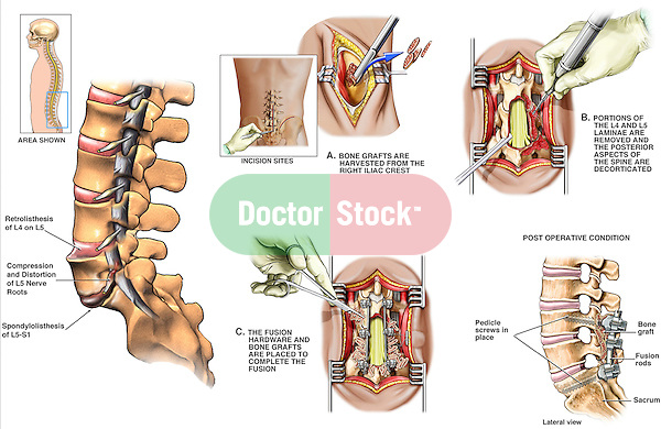 Back Surgery - L5-S1 Spondylolisthesis with Subsequent Surgical Repair. This full color medical exhibit consists of six images depicting spondylolisthesis and surgery. The first image shows the initial spondylolisthesis of the lumbar spine. The next five images show five steps to the repair and fixation of the problem...