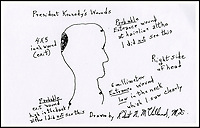 JFK surgeon sketch suggest's second shooter.