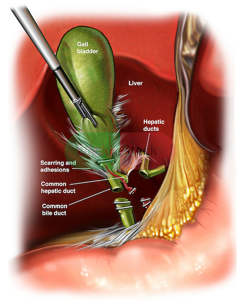 This image depicts an injury to the common bile duct which occurred during a cholecystectomy (gall bladder removal) procedure.