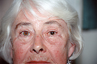 Patient after having a cataract removed in a hospital theatre. The new lens can be seen in the eye on the right. This image may only be used to portray the subject in a positive manner..©shoutpictures.com..john@shoutpictures.com