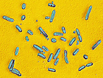 Pseudomonas aeruginosa Bacteria cause a wide variety of infections, especially nosocomial. LM